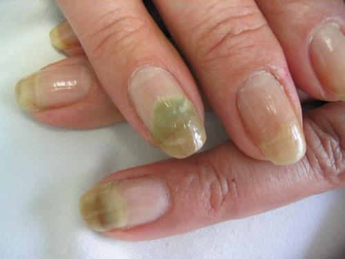 Por que ungüento curar el hongo sobre las uñas de los pies