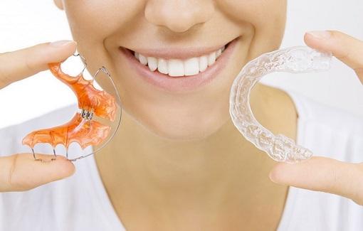 brackets-dientes